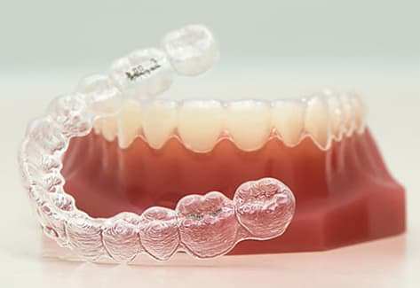 What is Invisalign | Jubilee Dental Centre | Summerland, BC
